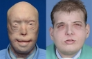 Transplant gives new face, scalp to burned firefighter
